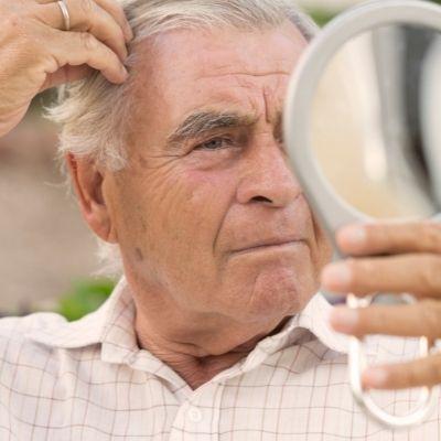 Hoe kunnen mannen haargroei stimuleren?